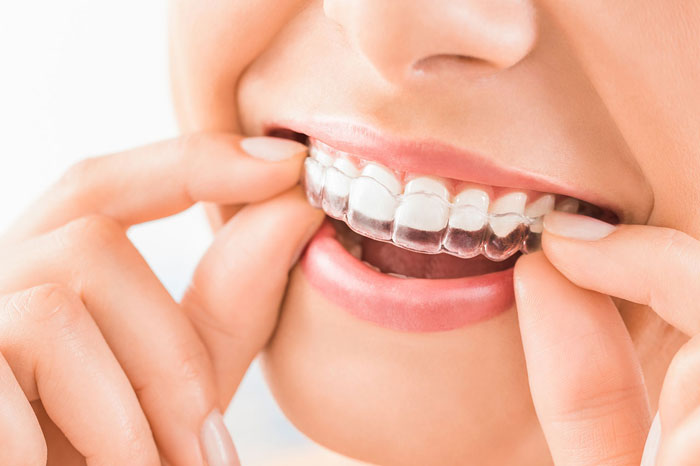 The Difference Between Invisible Braces and Traditional Braces